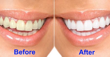سفید کردن دندان در منزل, آب اكسیژنه
