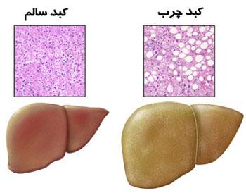 درمان بیماری کبد چرب, تغذیه برای کبد چرب