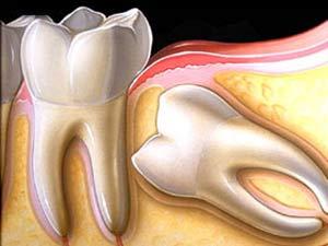 جراحی دندان نهفته, دندان پزشک, دندان نهفته