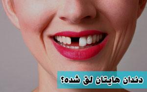 لق شدن دندان دائمی, دندانپزشک