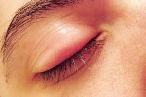 درمان گل مژه, بیماریهای چشم, گل مژه و درمان