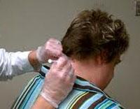 دیستونی عضلات, درمان گرفتگی عضلات