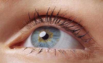 پزشكي: درباره ی استفاده از لنز