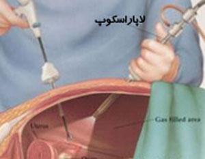 لاپاروسکوپی, جراحی باز, عمل جراحی