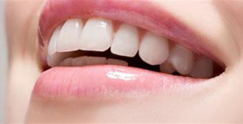دندان, پرکردن دندان, پوسیدگی دندان
