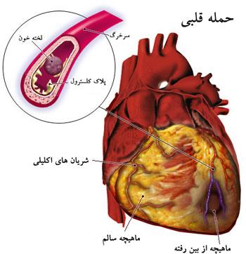 بيماريهاي قلبي و عروقي, بيماريهاي خطرناک, سکته مغزي