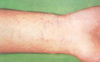لیکنپلان, درمان بیماری, بیماری خودایمنی