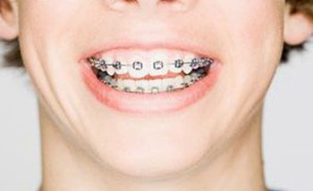 ارتودنسی, موقعیت طبیعی دندانها, درمانهای ارتودنسی
