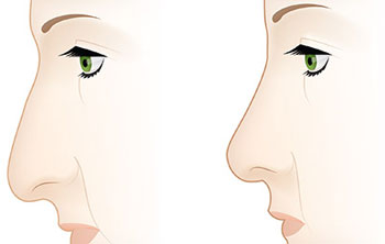 جراحی بینی, انواع بینی