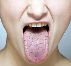 خشکی دهان, پوسیدگی دندانها, بزاق دهان