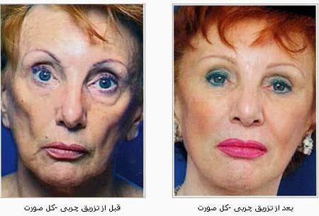 لیپوساکشن, روش های جوانسازی پوست, تزریق چربی, پروتز چانه