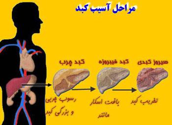 کبد چرب, اندامهای حیاتی بدن, بیماریهای کبدی