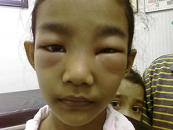 سندرم نفروتیک, بیماری مادرزادی, اختلال سیستم ایمنی بدن