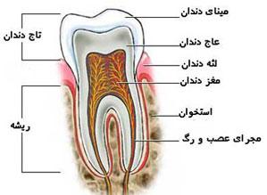 دندانپزشكي: علت درد دندان بعد از عصب کشی