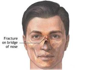 پزشكي: بررسی علل شکستگی بینی و درمان آن