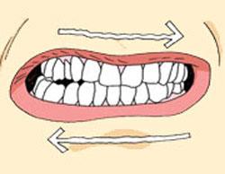پزشكي: علل دندان قروچه و راه درمان آن