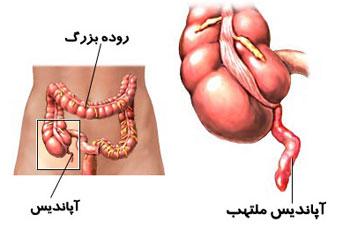 عمل جراحی آپاندیس, ترکیدن آپاندیس