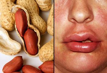 حساسیت غذایی, درمان آلرژی, حساسیت به بادام زمینی