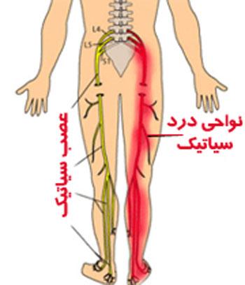 کمردرد, عصب سیاتیک, علایم سیاتیک, تنگی ستون فقرات