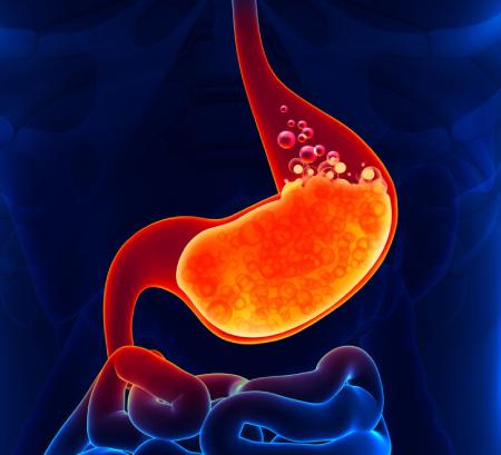 بیماری ریفلاکس, علائم ریفلاکس, برگشتن غذا