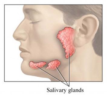 علل تومورهای غدد بزاقی, درمان تومورهای غدد بزاقی