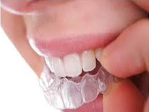حساسیت دندانها, مینای دندان, درمان دندانقروچه