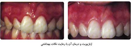 علائم ژنژیویت, بوی بد دهان, پلاک دندانی