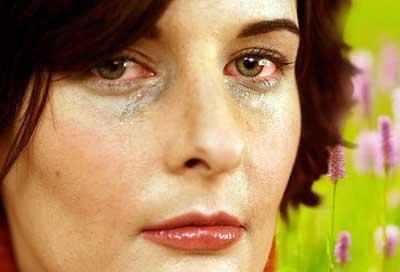 حساسیتهای چشمی, آلرژی چشم, قرمزی چشم