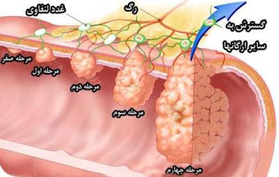 سرطان روده بزرگ, علايم پوليپ روده بزرگ