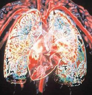بیماریهای عفونی| انگل