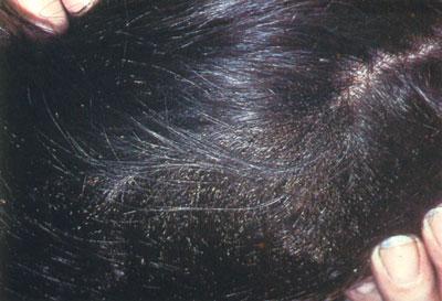تخم شپش| درمان شپش سر