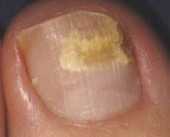 قارچ ناخن| بیماریهای ناخن