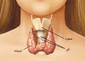 نشانههای سرطان تیروئید, درمان سرطان تیروئید(http://www.oojal.rzb.ir/post/1242)