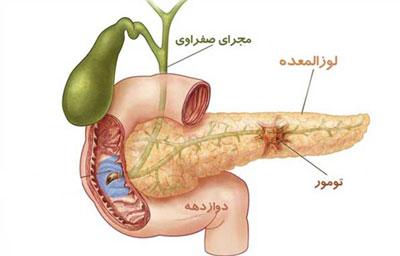 نشانههای بیماری لوزالمعده, بیماریهای گوارشی