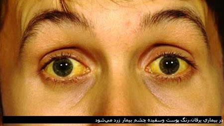 پیشگیری از زردی,بیماری های کبدی