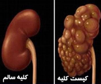 درمان کیست کلیه| علائم کیست کلیه