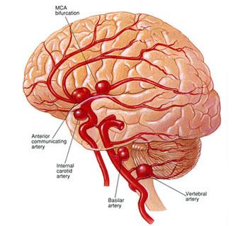 علائم آنوریسم مغزی|عوارض آنوریسم مغزی