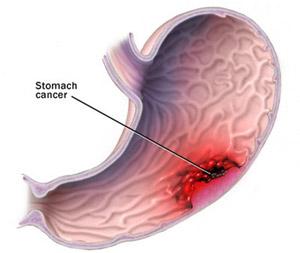 کاهش وزن| درمان سرطان معده
