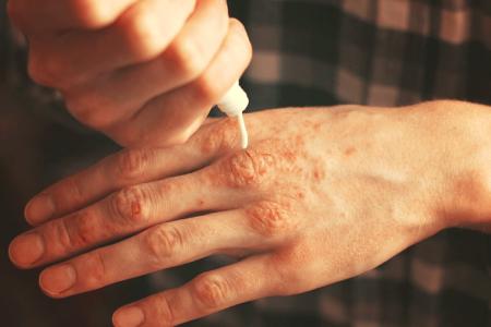 درمان اگزما, بیماری مزمن پوستی