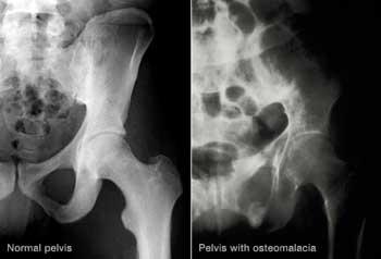 استحکام استخوانها| کلسیم