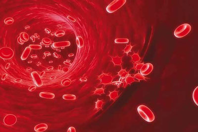 انواع سرطان خون, علایم سرطان خون و نحوه درمان آن