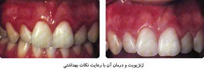 بیماریهای لثه ،نشانههای بیماری لثه