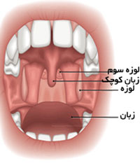 عفونت لوزه| درمان لوزه سوم
