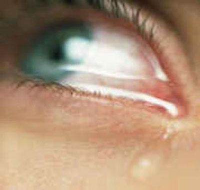 اورژانسهای چشم