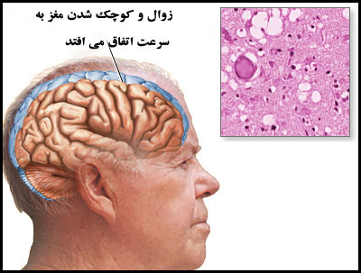 بیماری کروتزفلد جاکوب