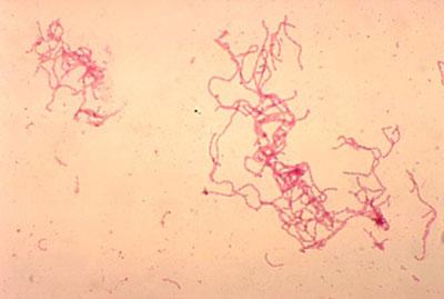 دستگاه تناسلی, علایم بیماری شانکرویید