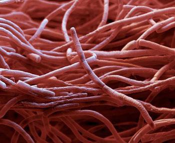 بیماری سیاه زخم / علائم و درمان سیاه زخم