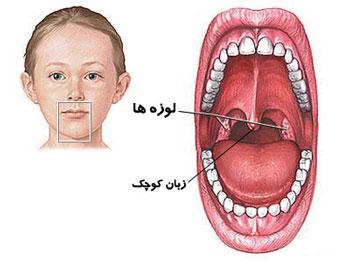 چرا زبان کوچک،بزرگ می شود؟