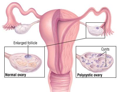تنبلی تخمدان (PCO) یا سندرم تخمدان پلی کیستیک