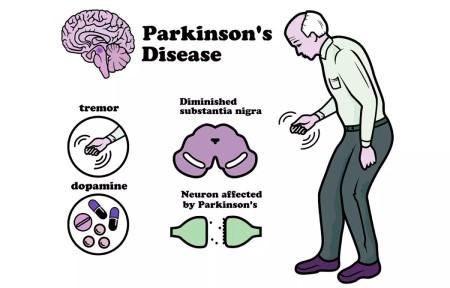 با بیماری پارکینسون آشنا شوید